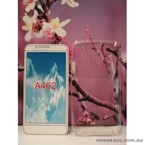 TPU Gel Case Cover For Telstra 4GX Plus/ZTE Blade A462 - Clear